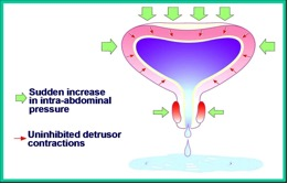Picture of Overflow incontinence