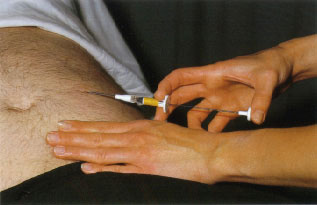 Picture of Injection of LHRH