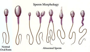 Picture of Male Infertility