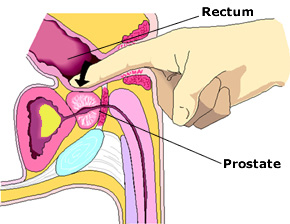 Picture of Prostate