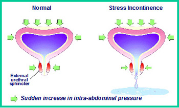 Picture of Stress incontinence