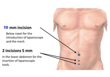 Picture of Laproscopic surgery