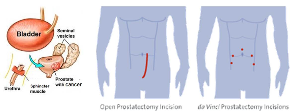 Robotic Prostatectomy Chin Chong Min Urology Robotic Surgery Centre