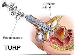 turp operation komplikationer