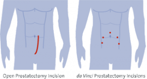 Incisions for open compared to robotic method