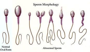 where male infertility located