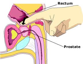 boggy prostate prostatitis