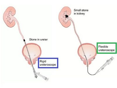 Rigid vs flexible ureteroscope