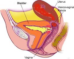Gynae-urology