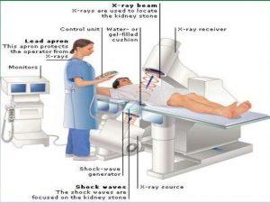 Lithotripsy prostatitis